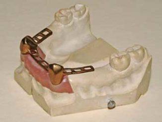 Dritte Zähne: Behandlungshonorar vom Zahnarzt zurückverlangen / Quelle: Fotolia